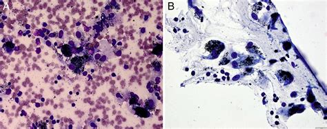 Endobronchial anthracosis with concurrent primary lung