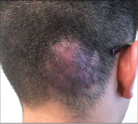 Swelling and Erythema of the Scalp on a Teenager - Photo